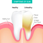 Nashville Restorative Dentistry: When Plaque Attacks